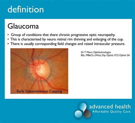 Definition of Glaucoma